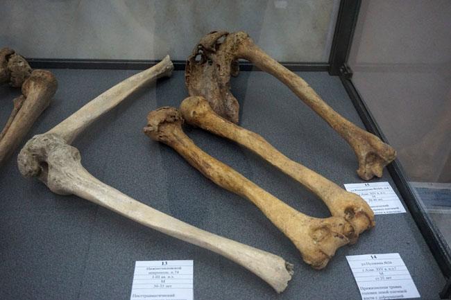 кость-и-лопатка-с-травмой