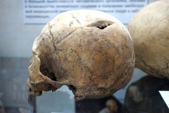 череп-с-прижизненной-травмо